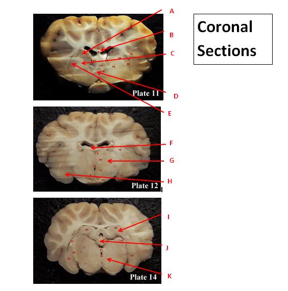 Coronal Sections